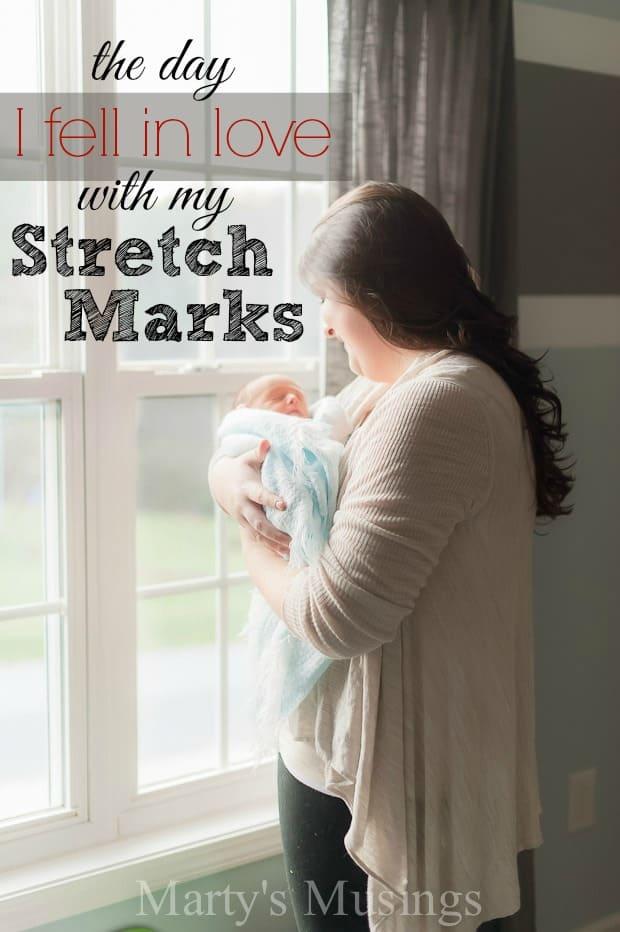 The Day I Fell in Love With my Pregnancy Stretch Marks